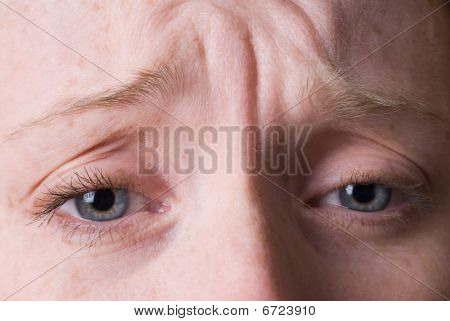 Wrinkled Brow