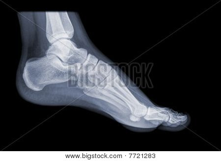 healthy foot on x-ray