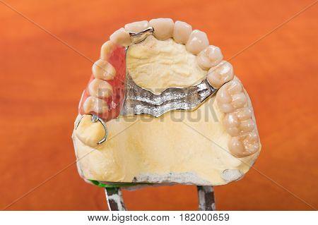 Dental skeletal prosthesis on gypsum casting in office.