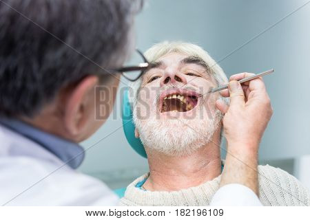 Senior man at dentist office. Person with bad teeth. Symptoms of caries.