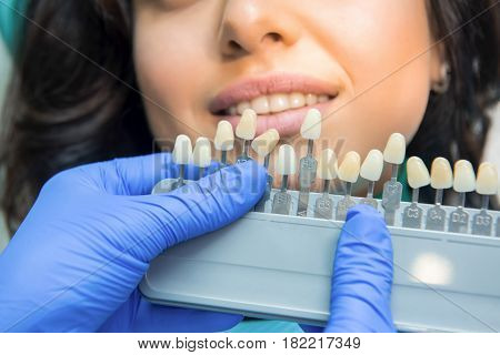 Tooth color chart. Hands of dentist in gloves. Teeth whitening solutions.