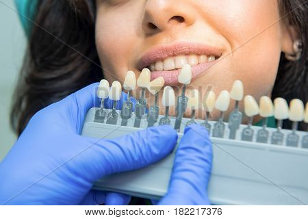 Tooth whitening chart. Smile of young woman.