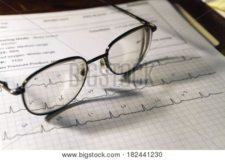 A still life of a page displaying an Electrocardiogram (EKG) heartbeat graph with eyeglasses resting on top of