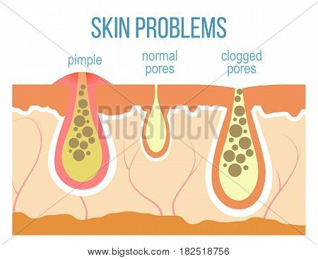 Skin problems - acne pimples and clogged pores. Skin pores close up. Vector.