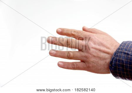 Hands Of Middle-aged Woman Deformed By Arthritis