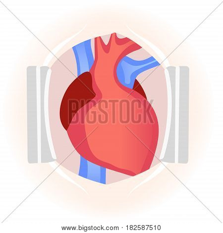 Human heart during surgery. Schematic vector illustration. Venous and arterial blood circulation