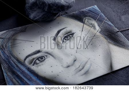Acupuncture needles on drawing of woman's face