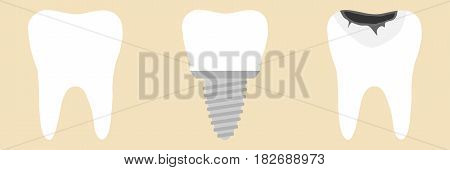 Tooth tooth implant. Flat design vector illustration vector.