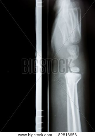 X-ray Image Of Normal Old Age Knee
