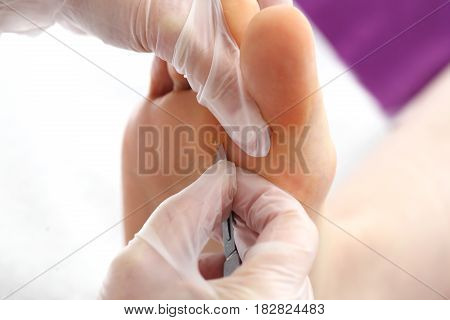 Callus on the foot. Imprint on the foot. The doctor removes the imprint on the foot with a scalpel. Podology. Removing the prints on the foot.