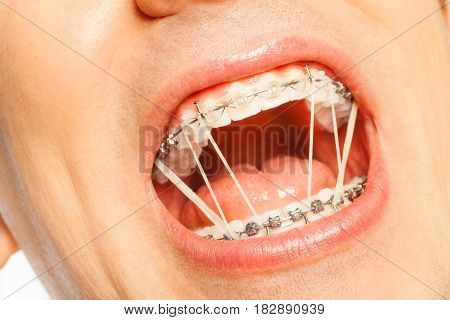 Close-up of mouth of a man with orthodontic rubber strings on a braces for correcting a bite