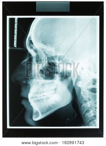 Profile xray of man's jaw with tooth close-up for dental orthodontic specialist and also dispositional wisdom teeth