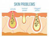 Skin problems - acne pimples and clogged pores. Skin pores close up. Vector. poster