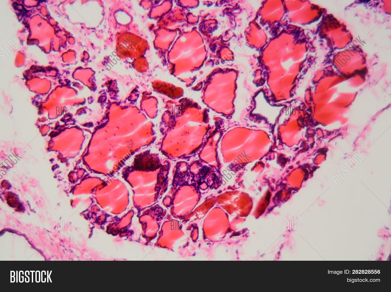 Human Thyroid Gland Image Photo Free Trial Bigstock