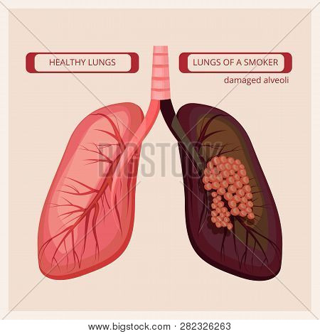 Smoker Lungs. Smoke Human Damage Lung Cancer Vector Medical Infographic Pictures. Smoker Lung Cancer