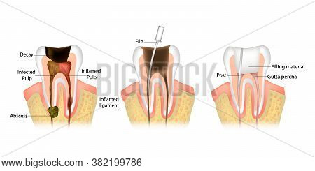 Endodontic Root Canal Treatment Process. Dentistry, Dental Restoration Concept. Tooth Decay Caries D