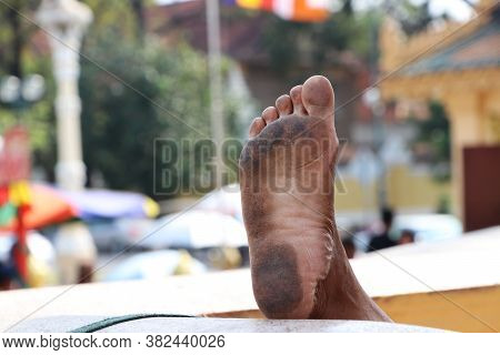 Dirty Foot Sole On Blur Background. It Is The Lower Extremity Of The Leg Below The Ankle, On Which A