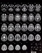 Brain magnetic risonance Mri on a Children 10 Years poster