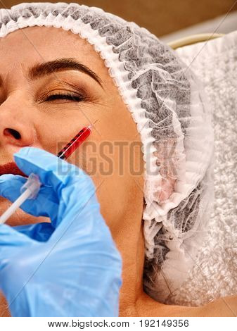 Filler injection female face. Plastic facial surgery in beauty clinic. Eelderly woman of 50-60 years takes care of her appearance. Doctor medical gloves with syringe injects . Removal of wrinkles .