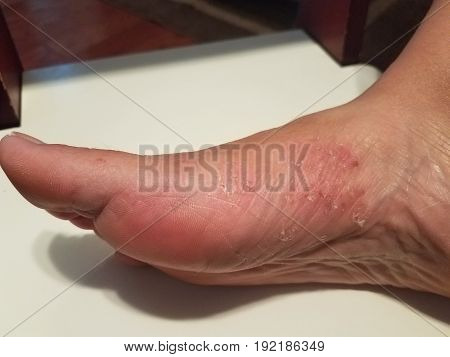 red and rough fungus scaly skin patch on woman's foot