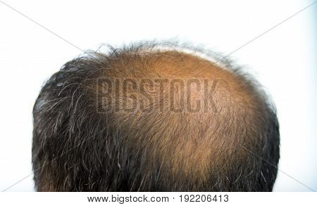 Baldness man Middle-aged man with hair loss.
