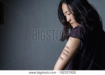 bruise on arm of woman (abuse concept) on black