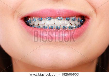 Closeup Of Woman Teeth With Braces