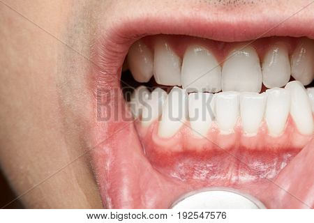 Man mouth with healthy teeth close-up. Doctor dentist checking man mouth