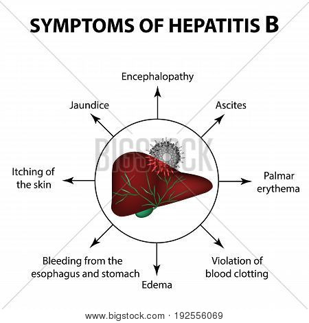 Symptoms of hepatitis B. Liver. World Hepatitis Day. July 28th. Infographics. Vector illustration on isolated background.