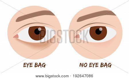 an eye bag vector . before after