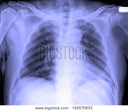 X-ray Image Of Male Human Chest