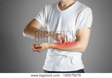 Guy In White Shirt Scratching His Arm. Scabies. Scratch The Hand. Isolated