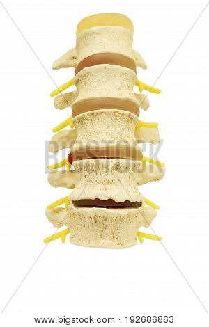 Front view of plastic study model backbone spinal nerve (spinal vertebrae orthopedic) isolated on white background clipping path.