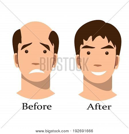 Men thinning hair treatment before and after. on white background
