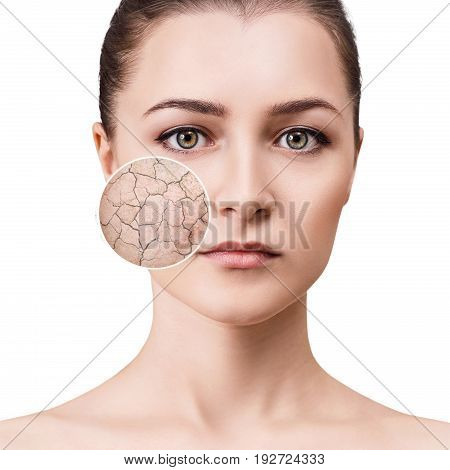 Zoom circle shows facial skin before moistening. Dry skin concept.