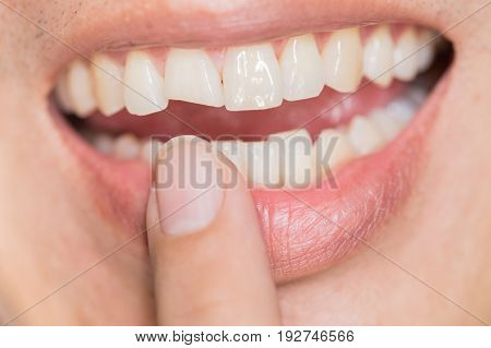 ugly smile dental problem. Teeth Injuries or Teeth Breaking in Male. Trauma and Nerve Damage of injured tooth Permanent Teeth Injury.