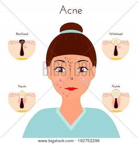Skin problems. Girl closse up face with different types of acne pimples. Facial treatments and problems vector illustration. Whiteheads and Blackheads, Papules and Pustules, stages of development.