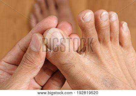 Male Foot