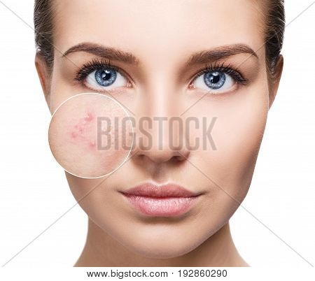 Young woman with perfet skin and acne skin in zoom circle. Before and after concept.