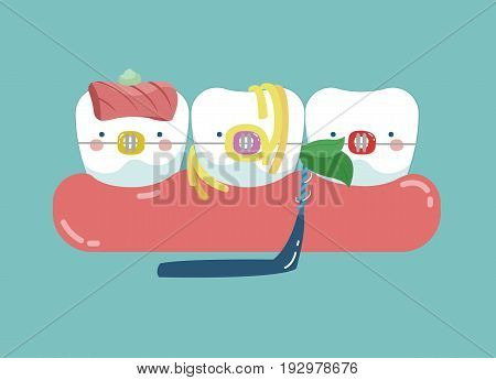 Food stuck teeth, teeth and tooth concept of dental