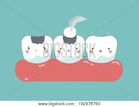 Filling tooth ,teeth and tooth concept of dental