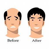 Male baldness pattern stages set. Man with alopecia before and after hair treatment and transplantation. Vector illustration. poster