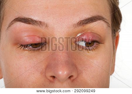 Hordeolum On Upper Eyelid. Viral Infection