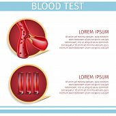 Blood Test Square Hematology Medical Banner Depicting Icons of Erythrocyte Cells Moving Inside of Vein or Artery and Red Sample Fluid in Test Tubes. Vector Realistic Illustration with Copy Space. poster