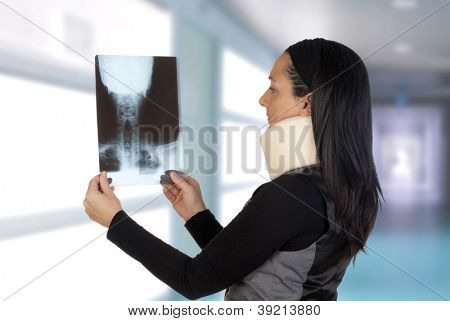 Woman with cervical collar looking her radiography in the hospital