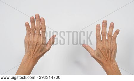Senior Or Older Woman Hand That Had Arthritis Or Trigger Fingers On White Background.