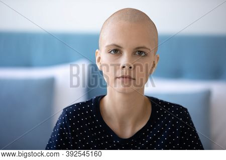 Head Shot Portrait Unhappy Exhausted Hairless Young Woman With Oncology