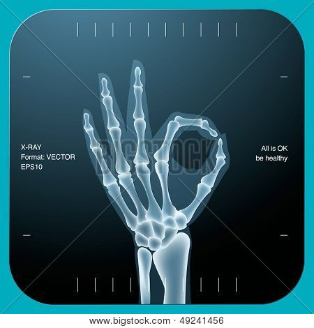X-ray of both human hand - OK symbol