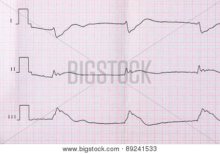 Tape Ecg After Clinical Death And Successful Resuscitation