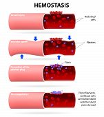 Basic steps in hemostasis. Human anatomy. Vector illustration poster